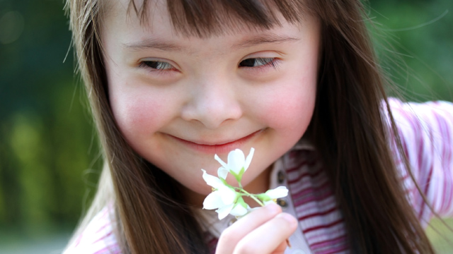 171384-down-syndrome